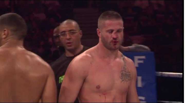 Disturbing MMA Video: Knee to the Face May Cause Broken Nose