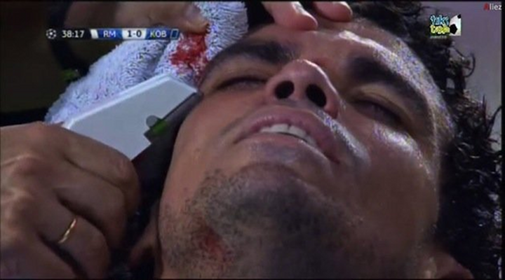 Real Madrid's Pepe Gets His Head Stapled on the Pitch During Champions League Match [Video]